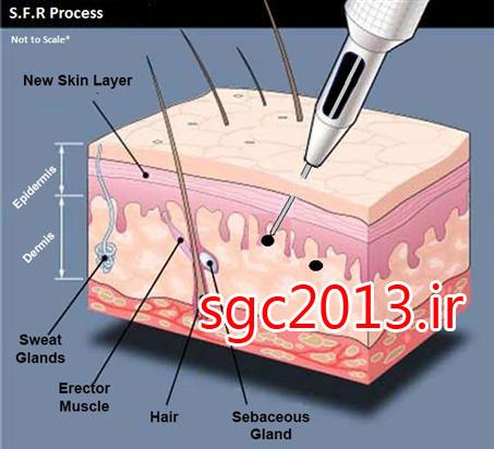 مرکز تخصصی میکروپیگمنتیشن ( شبکه آرایش دائم )