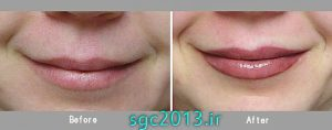 عکس میکروپیگمنتیشن لب micropigmentation lip